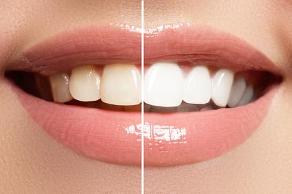 Parodontitis, Zahnarztpraxis Lange