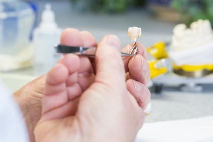 Füllungstherapie, Zahnarztpraxis Lange